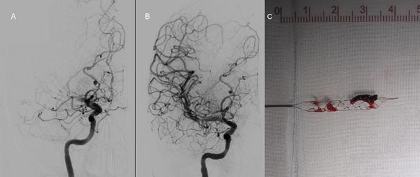 Afbeelding 1: Vaatonderzoek voor (A) en na (B) mechanische verwijdering van een stolsel uit een afgesloten bloedvat in de hersenen bij een patiënt met acute uitvalsverschijnselen. Na de behandeling is het vat weer helemaal open. C: Het stolsel zit gevangen in de stent. www.youtube.com/watch?v=uG9eDdOEC4U